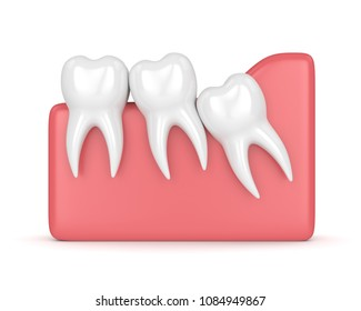 3d render of teeth with wisdom crowding over whie background. Concept of different types of wisdom teeth problems.