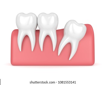 3d render of teeth with wisdom distal impaction over white background. Concept of different types of wisdom teeth impactions.