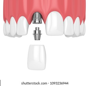 3d render of upper jaw with teeth and dental incisor implant over white background