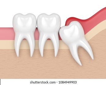 3d render of  wisdom mesial impaction with pericoronitis. Concept of different types of wisdom teeth problems.