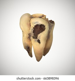 3d rendered illustration of caries tooth.