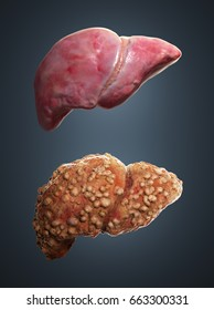3d rendered illustration of healthy and cirrotic liver.
