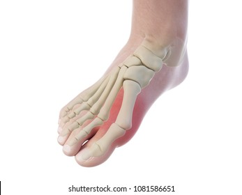 3d rendered, medically accurate illustration of a bunion