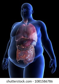 3d rendered, medically accurate illustration of an obese man´s organs