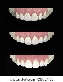 3D rendering dental background