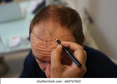 4 December 2014. Istanbul.Turkey. Hair transplantation is a surgical technique that moves hair follicles from a part of the body.