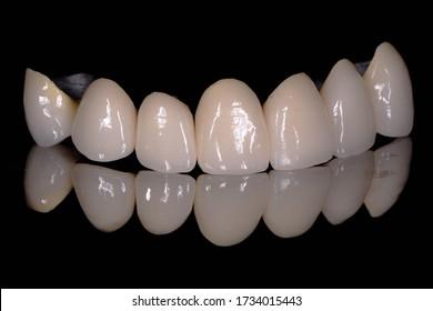 The 7-units ceramic-metal dental crowns