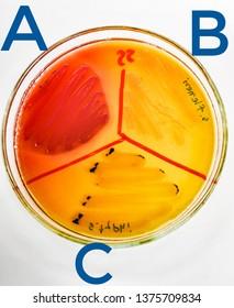 (A) E.coli , (B) S.flexneri , (C) S.Typhi On Salmonella-Shigella agar
