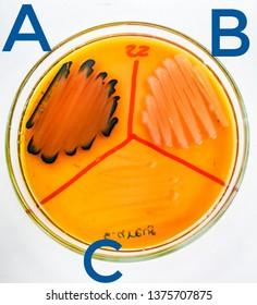 (A) P.mirabilis , (B) S.marcescens , (C) S.aureus On Salmonella-Shigella agar