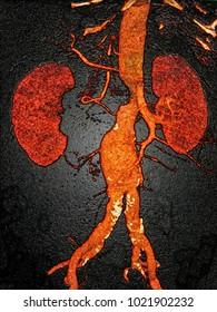 Abdominal aortic aneurysm, CT image