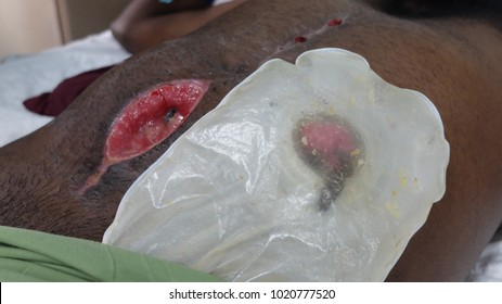 Abdominal wound dehiscence and Colostomy bag.