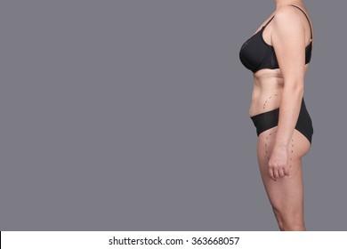 Abdominoplasty. Fat woman in underwear. WOMEN'S BODY. The female body, surgery, abdominoplasty female body.  EXCESS WEIGHT, Abdominoplasty female body