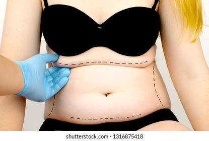 Abdominoplasty and torsoplasty: abdominal liposuction and removal of the apron. The patient at the reception at the plastic surgeon