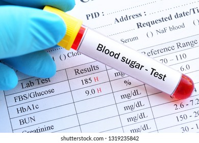 Abnormal blood sugar test results with blood sample tube