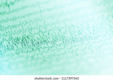Abnormal brain wave in human EEG of the patients in the electrical activity of the brain.Abnormal EEG on white background
