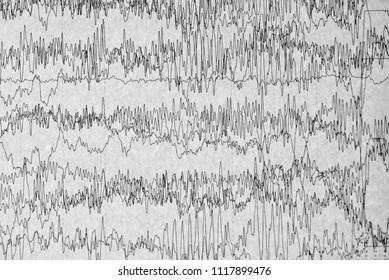 Abnormal brain wave of human,EEG show status epilepticus background,Brain problems in EEG.