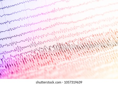 Abnormal EEG waveform, Abnormal EEG, Brainwave on electroencephalogram, EEG wave background, Status epilepticus waveform.