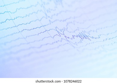 Abnormal EEG waveform, Abnormal EEG, Brainwave on electroencephalogram, EEG wave background, Status epilepticus waveform.