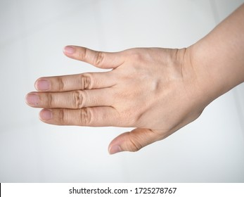 Abnormal finger alignment due to dislocated finger from playing basketball