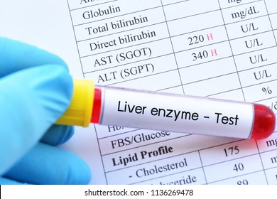 Abnormal high liver enzyme test result with blood sample tube