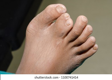Abnormal toe before surgery in the hospital.