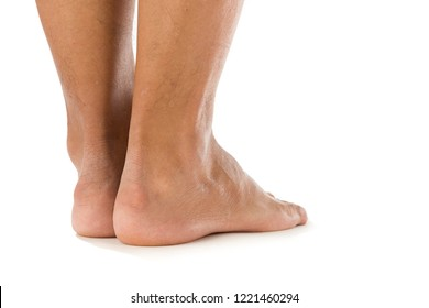 Abnormality of the bone and soft tissues in the foot called Haglund deformity isolated on white background.