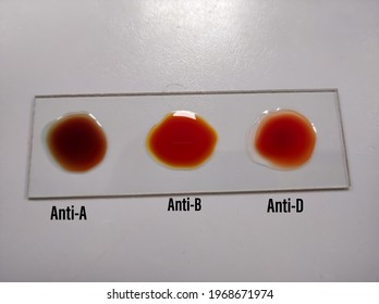 "ABO and Rh typing blood grouping by slide test techinque.""O"" Negative group"