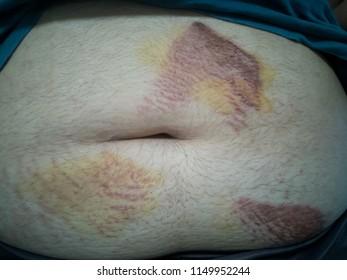 abrasion wound at abdomen