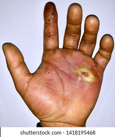 Abscess after pus sucked with pin prick marks and surrounding cellulitis or Staphylococcal skin infection at dirty palm of left hand in Southeast Asian Burmese male patient. Isolated.white background.