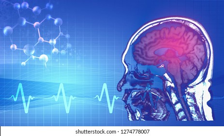 abstract background of magnetic resonance image (MRI) of brain with abstract symbol of pulse and humen gene in concept of brain sickness cause from gene