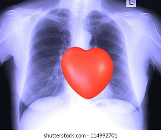Abstract picture with red heart and woman's chest x-ray