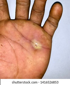 Aching abscess with pin prick marks and surrounding cellulitis or Staphylococcal /Streptococcal skin infection at dirty palm of left hand in Southeast Asian Burmese young male patient.