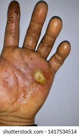 Aching abscess with pin prick marks and surrounding cellulitis or Staphylococcal skin infection at dirty palm of left hand in Southeast Asian Burmese young male patient. Isolated. white background.