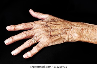 The aching hand of an old woman. An old woman has pains in the hands. The hand of an old woman