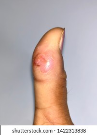 Aching impending abscess with surrounding cellulitis or Staphylococcal /Streptococcal skin infection at thumb of Southeast Asian Burmese young woman patient in clinic of Myanmar. Isolated image.
