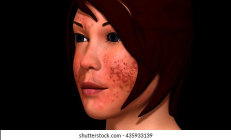 Acne 3d illustration