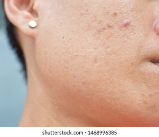 Acne, blemishes on the face and dark spots