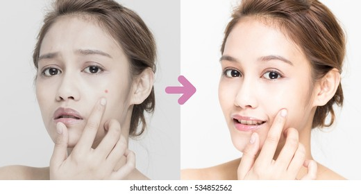 acne care before after