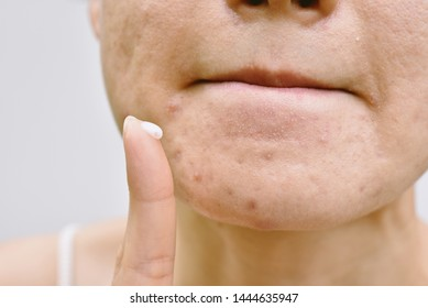 Acne and face skin problem, Woman applying acne cream medication, Topical pimple gel drug treatment.