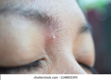 Acne inflammation and pus On the face between the brows.