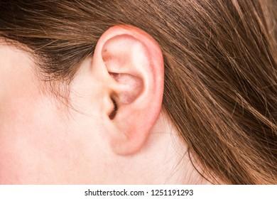 Acne inside the ear.