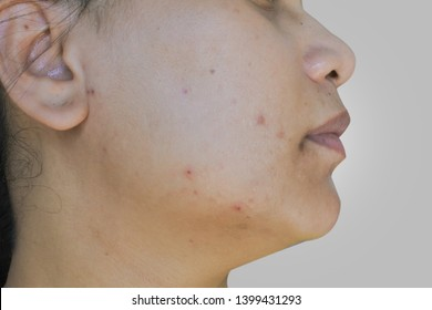 Acne marks on the face of Asian women.