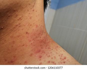 Acne On Neck Skin Dermatological Disease Acne