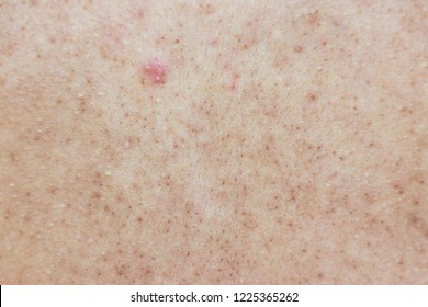 Acne on the back of a woman,Acne on the back,skin of a woman is acne.