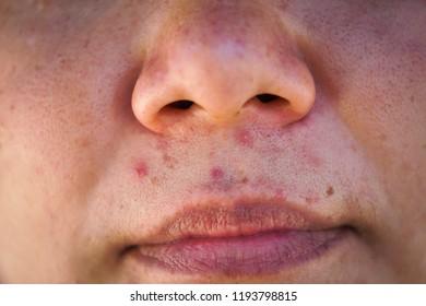 Acne on face.