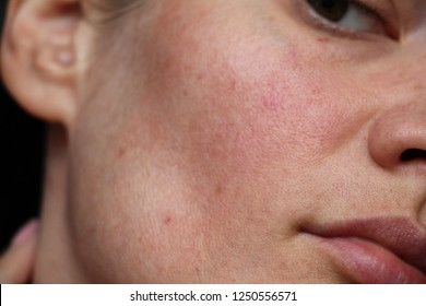 acne on the face. pores on the face