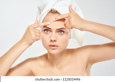 acne on the face of a woman