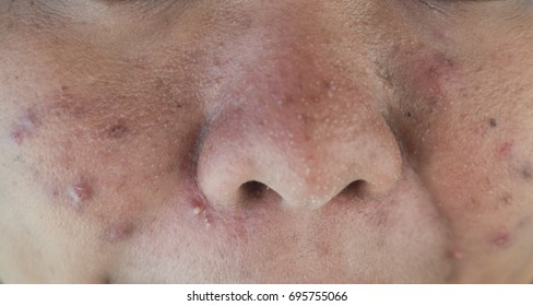 Acne on facial skin,Dermatological disease acne