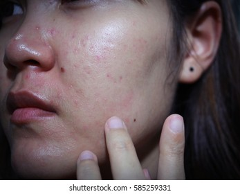 Acne on the girl's face, problematic skin and acne scars , Image close-up