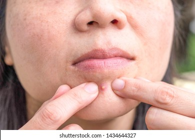 Acne pimple between mouth and chin in Asian woman skin face close up with hands to pop.